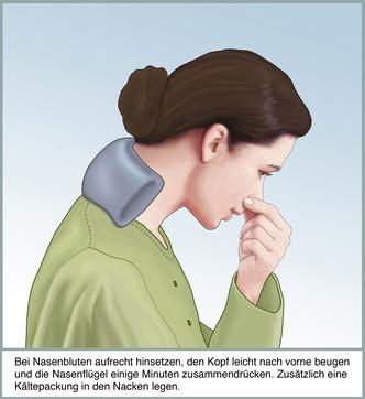 Sofortmassnahmen bei Nasenbluten gegen Stress